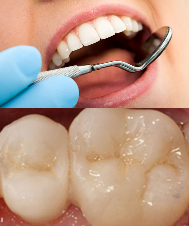 Importance of dental loupes