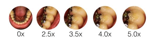 Dental Loupe