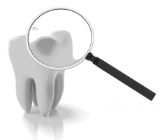 Why Dental Loupes Make It Easier For Dentists To Perform Their Work