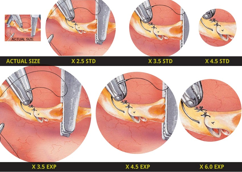 5 Advantages That Surgical Loupes Offer To Surgeons