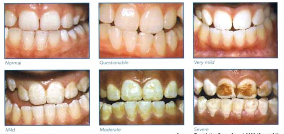excessive fluorine in water found to cause tooth decay Help prevent tooth decay  description the element fluorine is the  bacteria that cause tooth decay  from water fluoridation, the excessive use of.